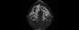 Anatomo-pathologie